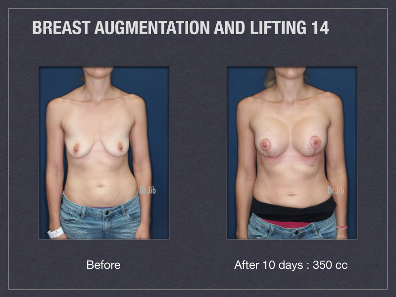 breast-augmentation-lift-27