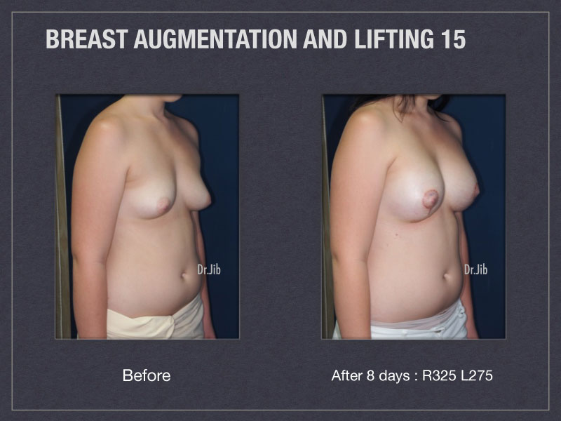 breast-augmentation-lift-30