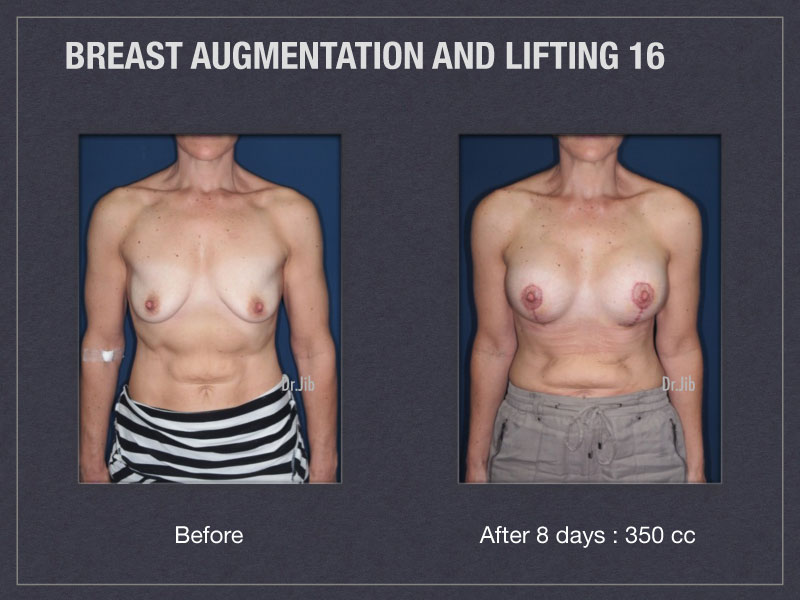 breast-augmentation-lift-31