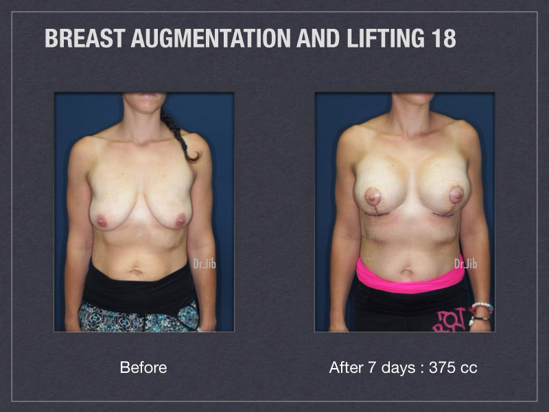 breast-augmentation-lift-35