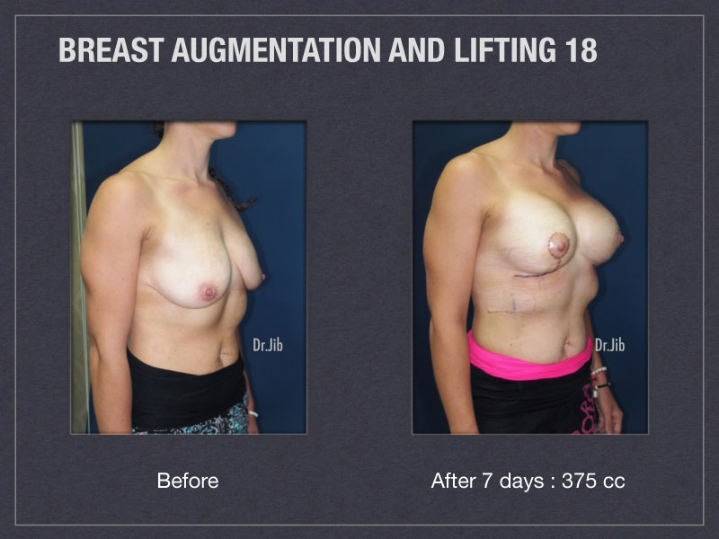 breast-augmentation-lift-36