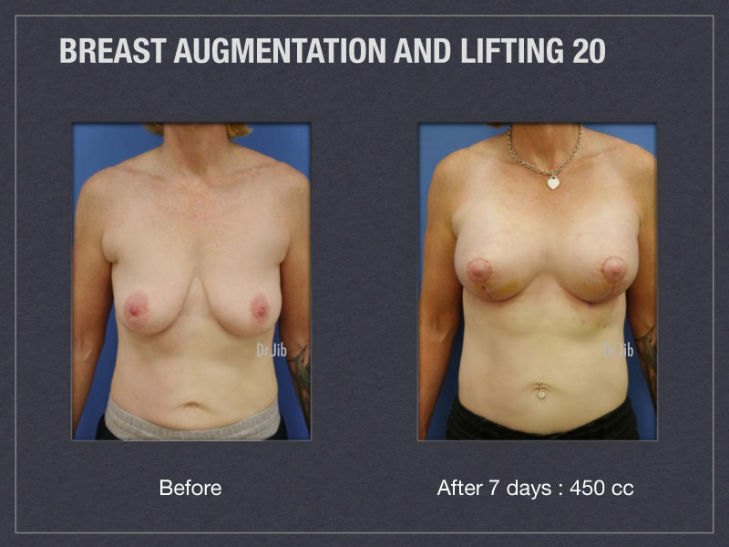 breast-augmentation-lift-39