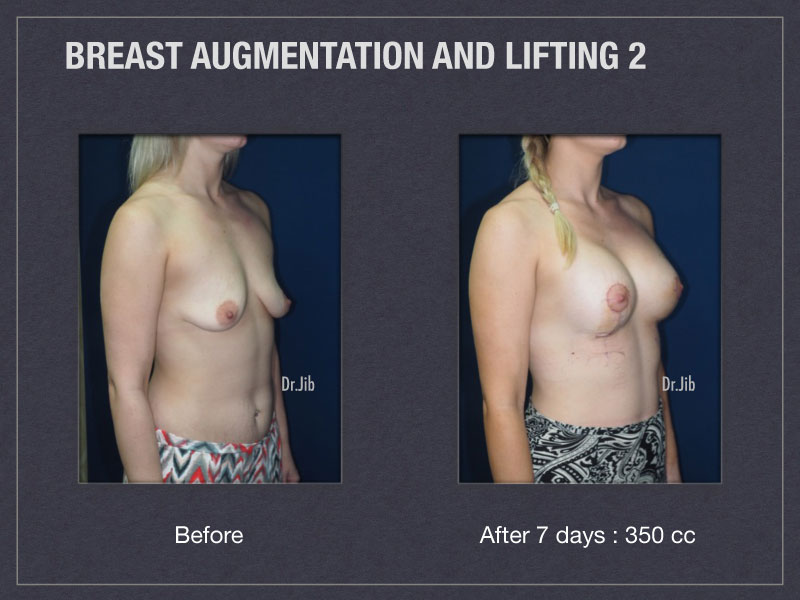 breast-augmentation-lift-4