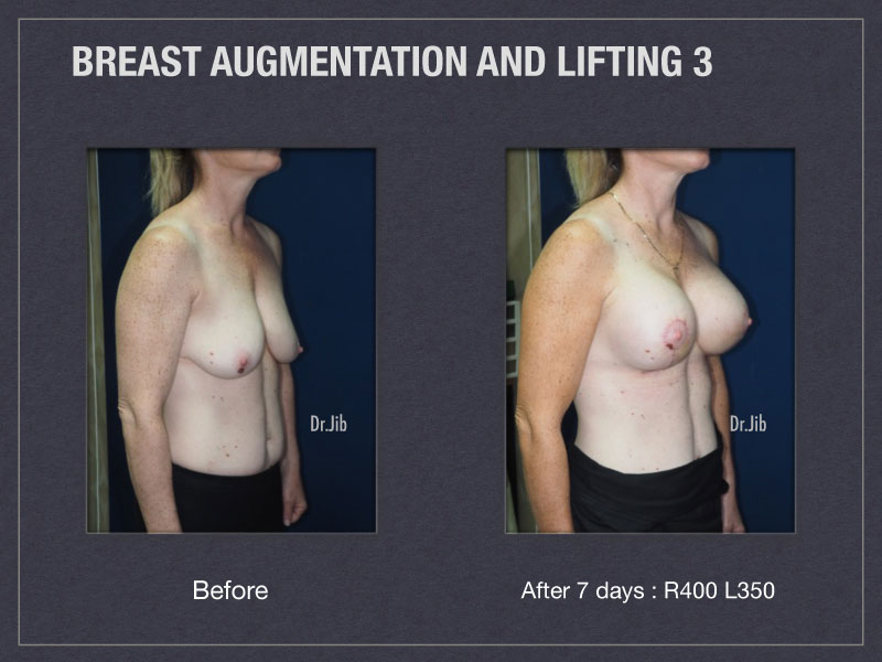 breast-augmentation-lift-6