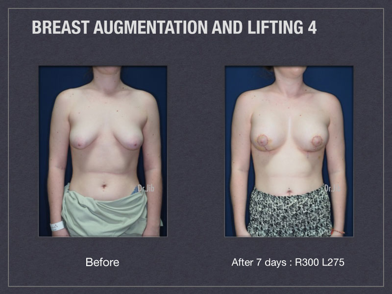 breast-augmentation-lift-7