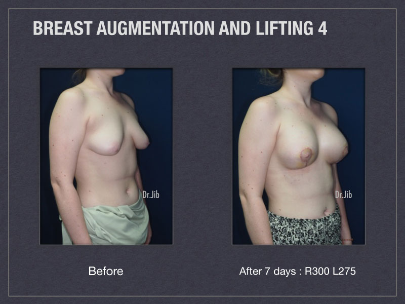 breast-augmentation-lift-8