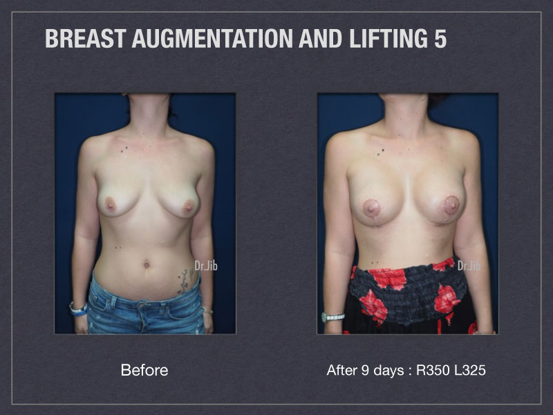 breast-augmentation-lift-9
