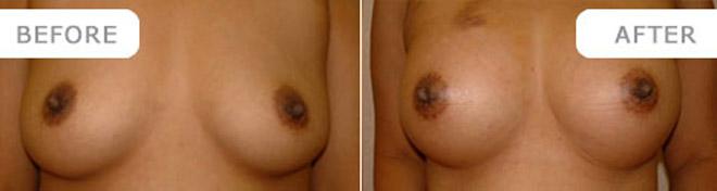 breastenlarge_5