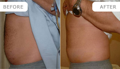 liposuction_1