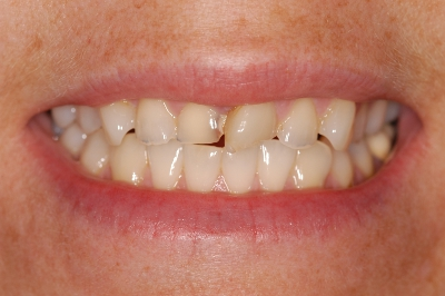 rct_1Before
