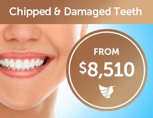 chipped-teeth-thumbnails