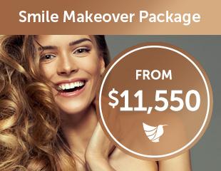 dental-smile-makeover-thumbnails2