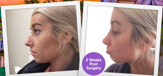 Restored Beauty Getaways | Cosmetic & Plastic Surgery
